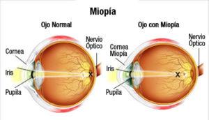 ojo-con-miopia